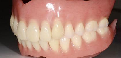 顎関節症や埋伏抜歯など外科的な治療も可能です